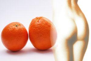 Quels sont les avantages et les inconvénients des appareils anti cellulite ?